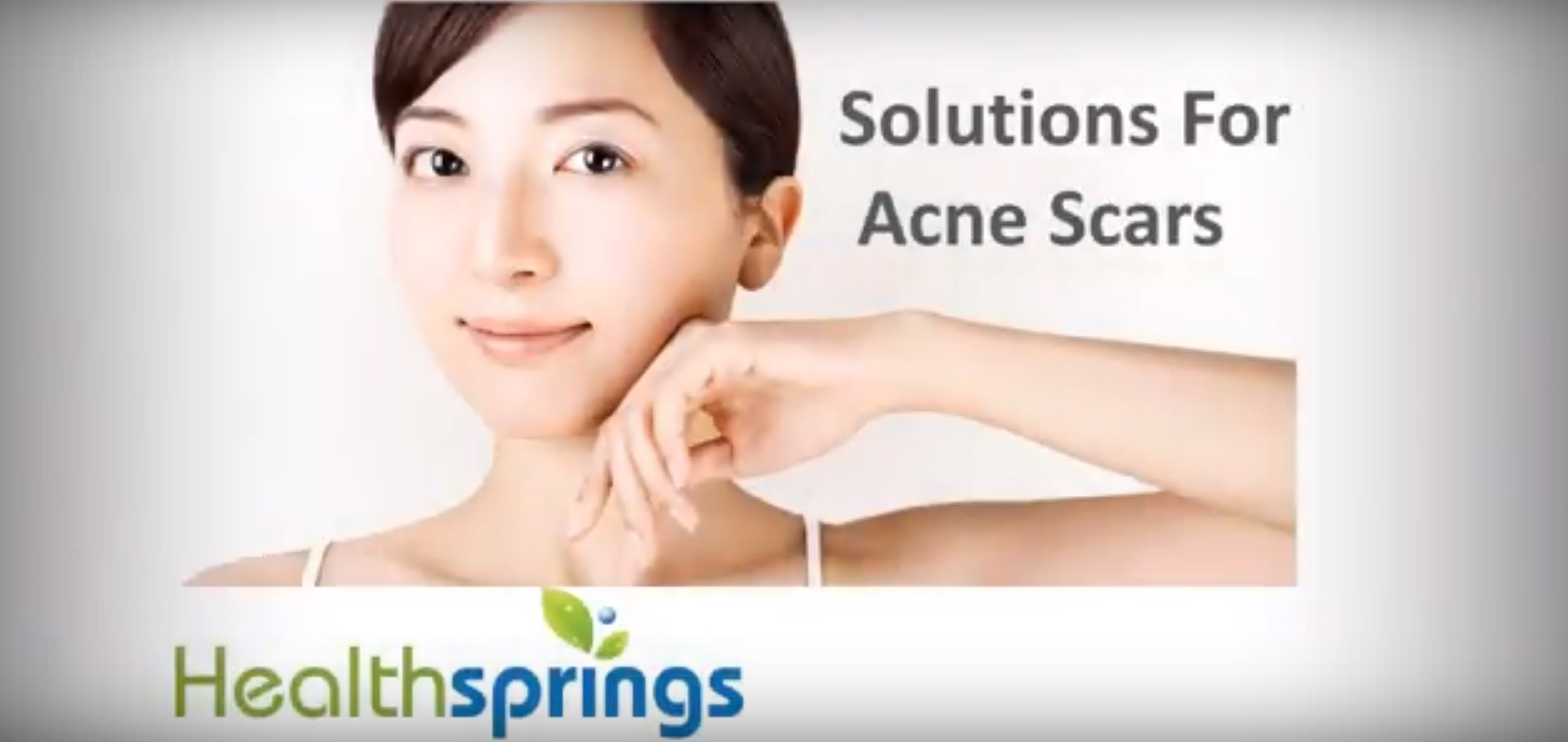 SOLUTIONS FOR ACNE SCARS