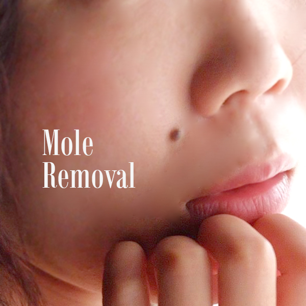 Mole Removal – Laser & Aesthetic Medical Clinic Singapore