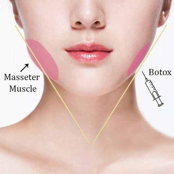 Am I a good candidate for Botulinum Injection for jaw reduction?