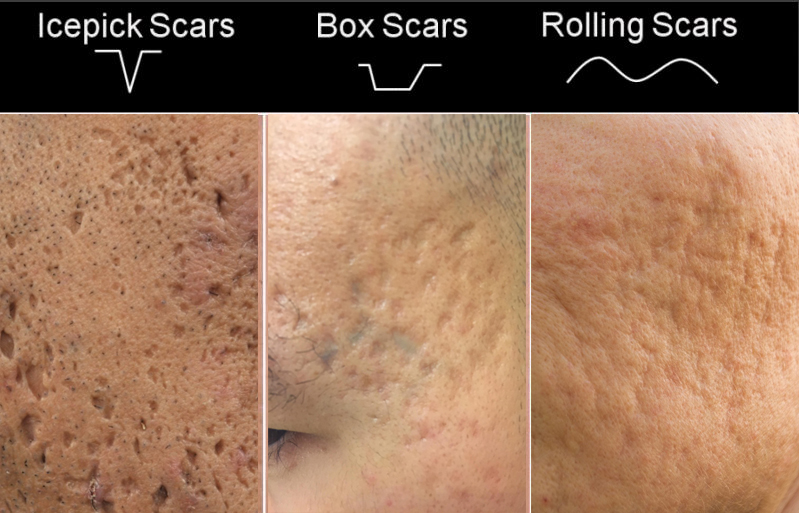 Types Of Acne Scars Aesthetic Clinic Singapore Medical