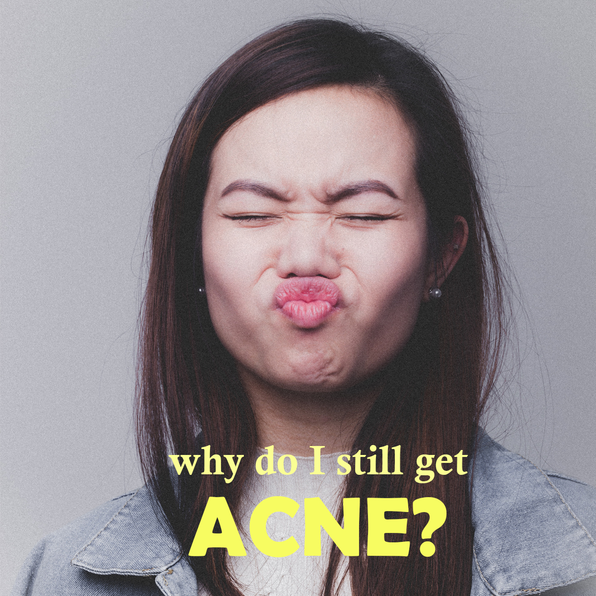 Why Do I Still Get Acne as an Adult?