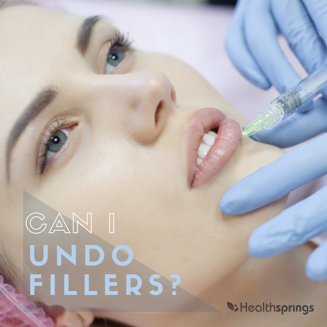 Can I 'undo' fillers?