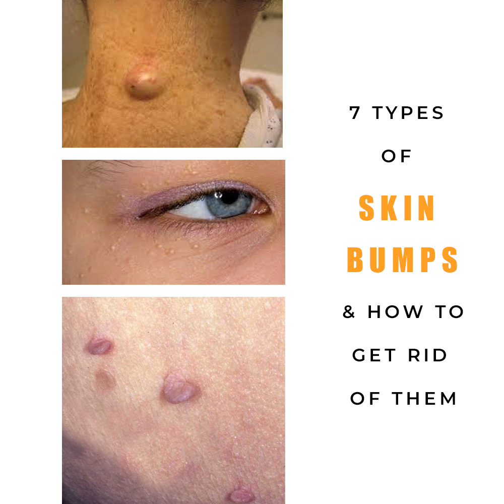 7 Types of Common Skin Bumps (Causes & Treatments)