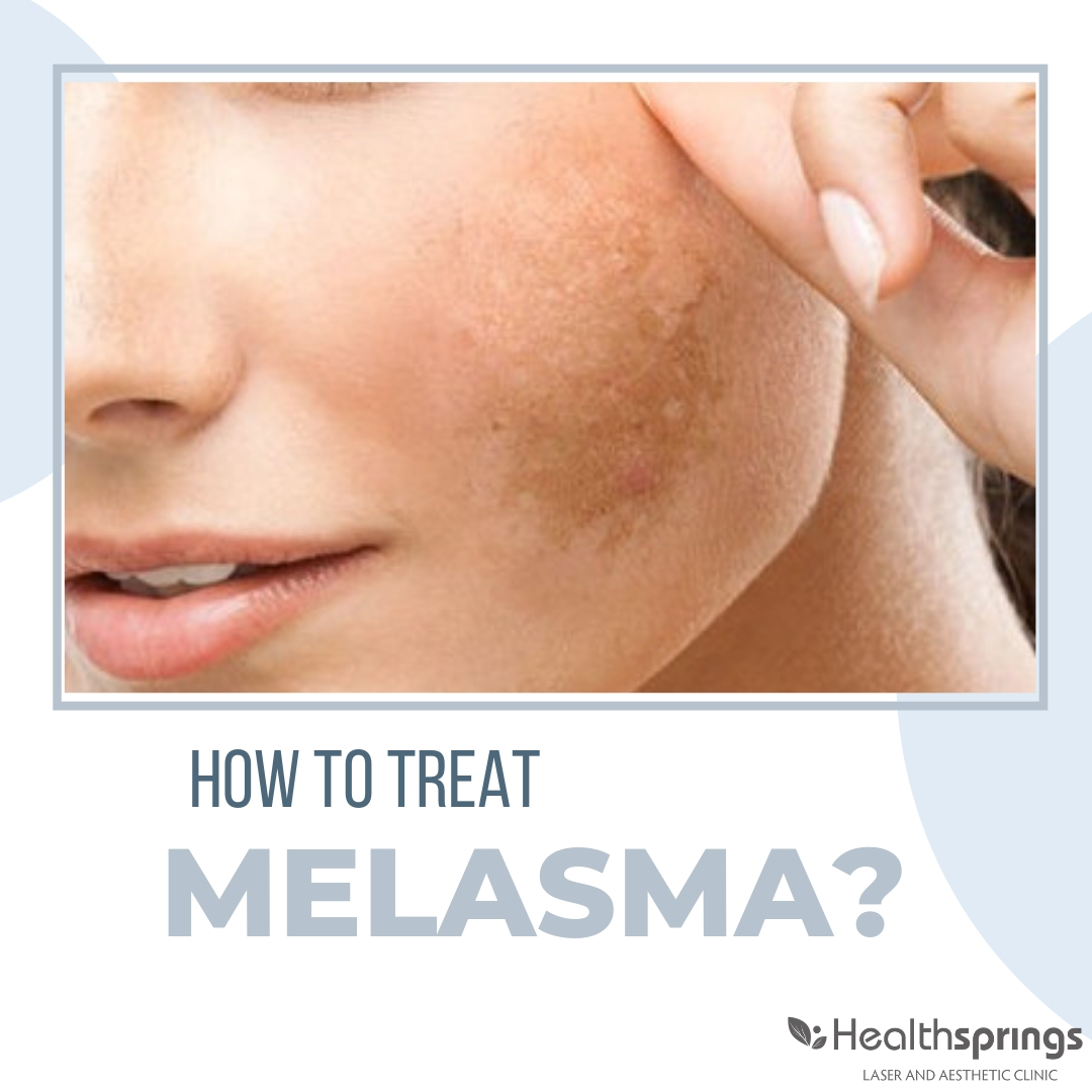How to treat melasma?