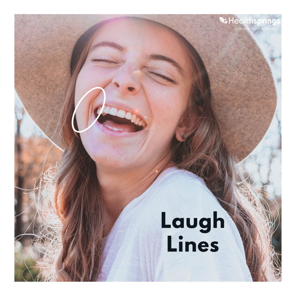 3 Ways to Get Rid of Laugh Lines Effectively