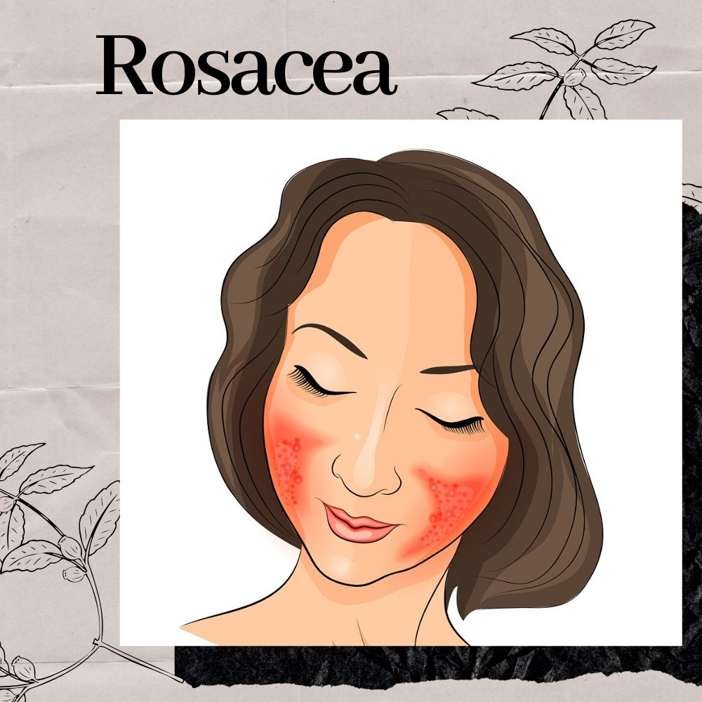 How Can the Yellow Laser Reduce my Rosacea and Acne?