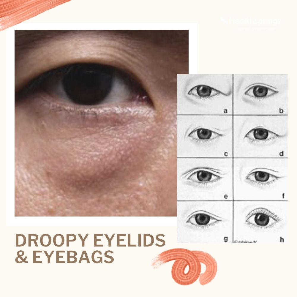 Droopy Eyelids and Eye bags: Alternatives to Surgical Options