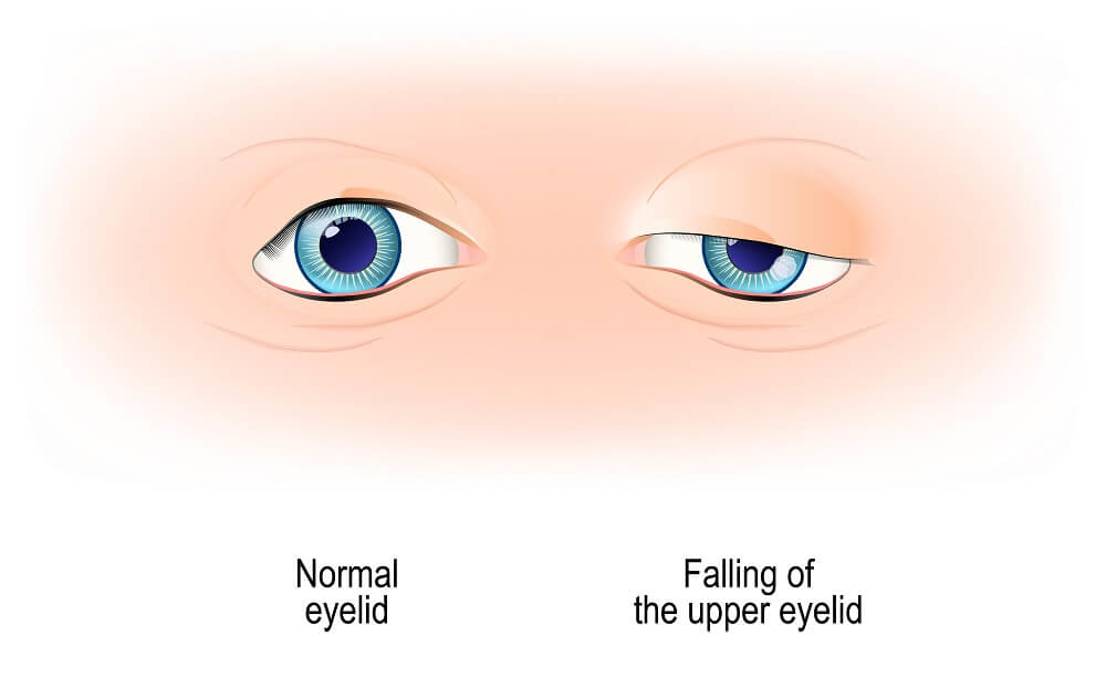 Non-surgical Procedures for Eyebags and Droopy Lids